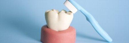 歯周病と歯槽膿漏の違いとは?