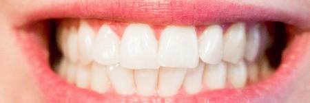 歯周病(歯槽膿漏)の症状とは?