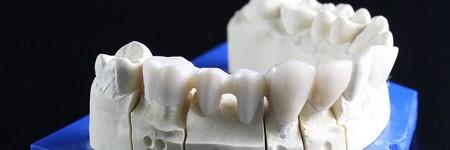 歯周病の対策方法